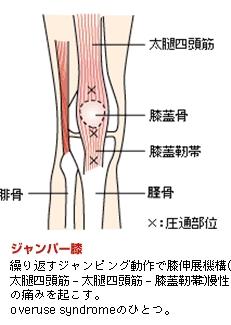 ジャンパー膝イメージ