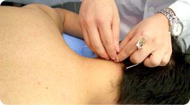 皮膚炎鍼治療